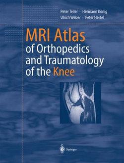MRI Atlas of Orthopedics and Traumatology of the Knee