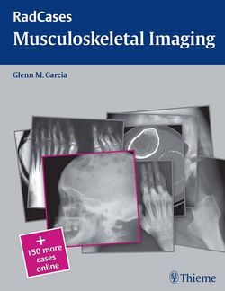 Radcases Musculoskeletal Radiology