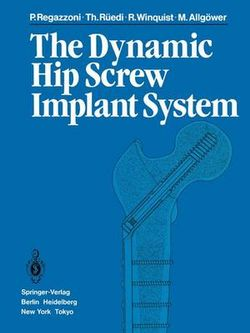 The Dynamic Hip Screw Implant System