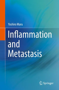 Inflammation and Metastasis